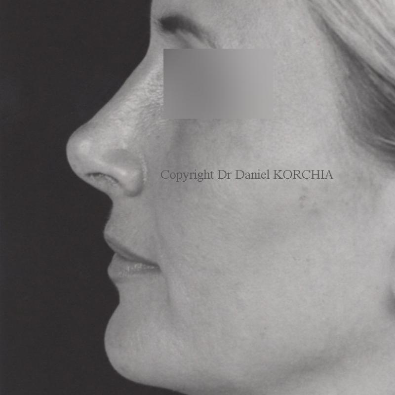 Photos de rhinoplastie avant et apr s une rhinoplastie - Bosse sur le nez apres coup ...