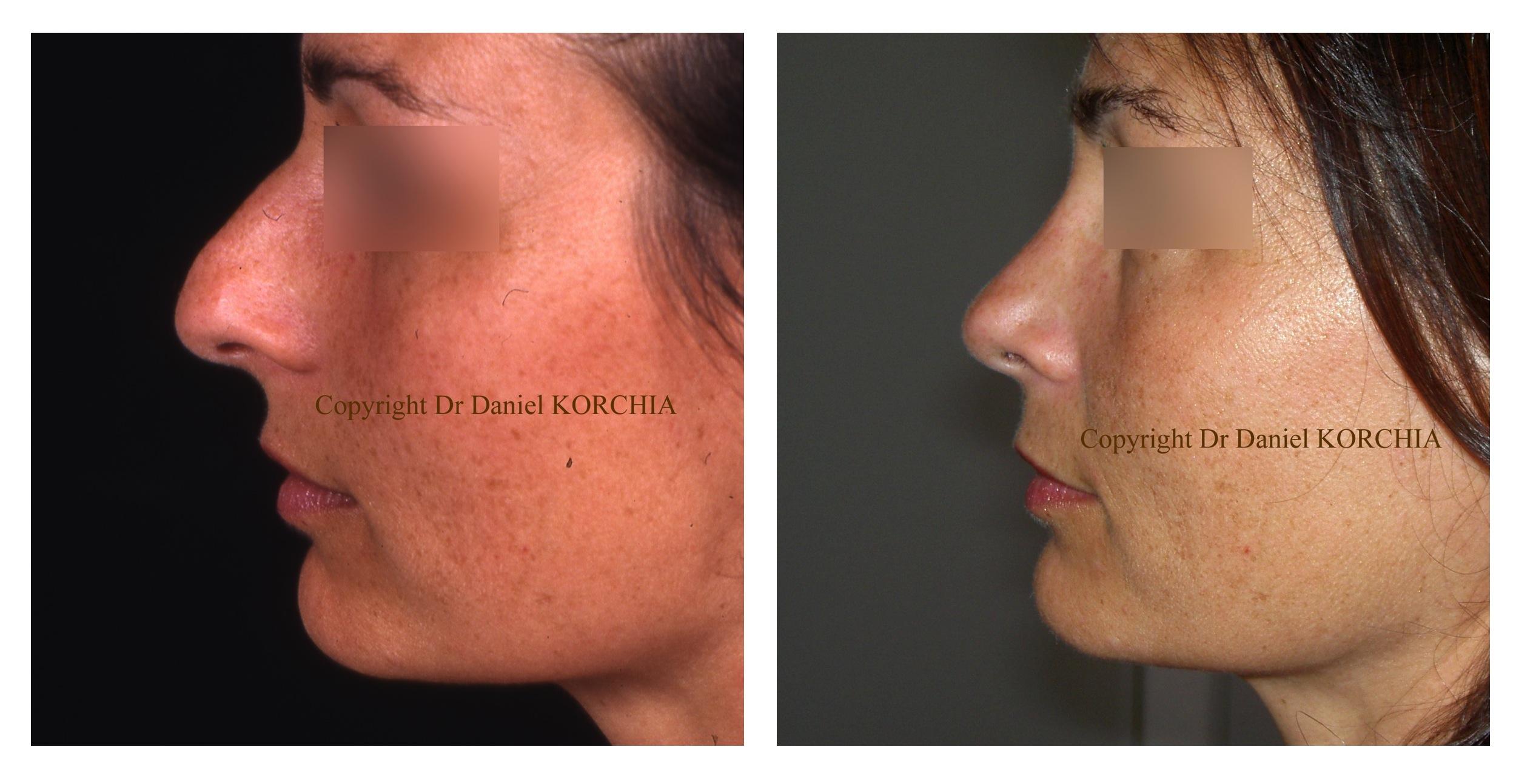 chirurgie plastique nez